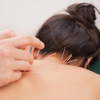 arthritis-acupuncture