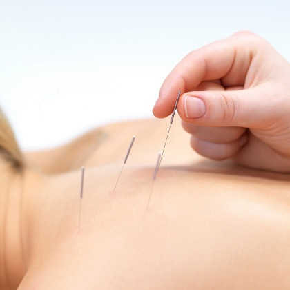 acupuncture square